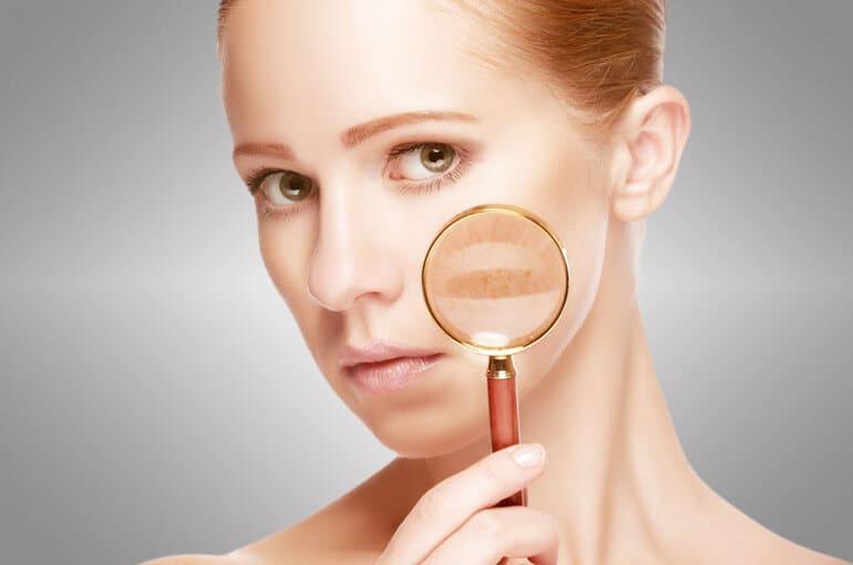 En este momento estás viendo 3 consejos para prevenir las manchas en la cara
