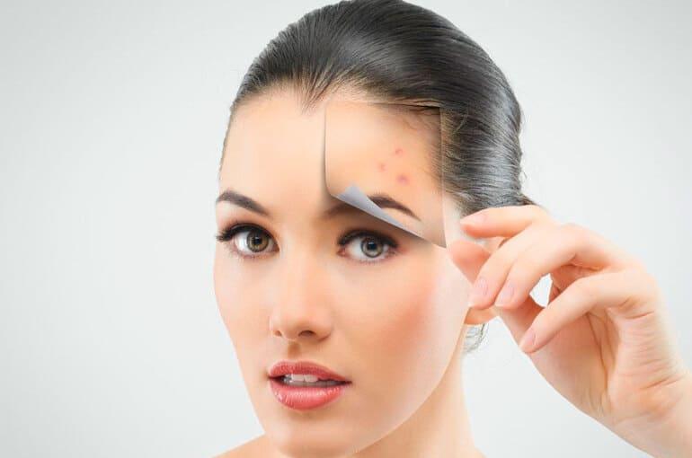 En este momento estás viendo ¿Qué causa el acné en los adultos?