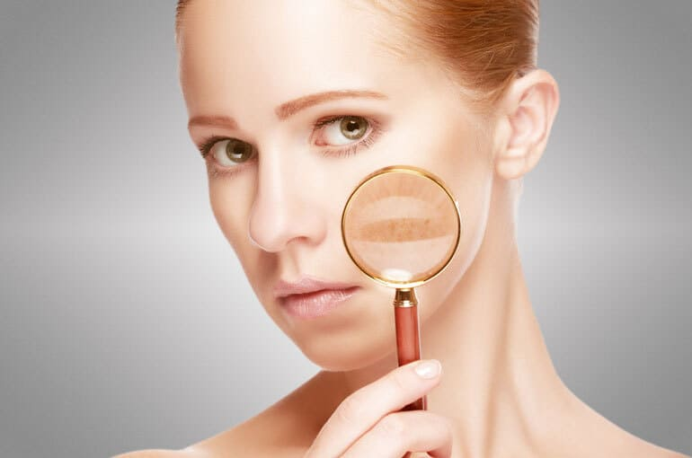 En este momento estás viendo Manchas en la cara   ¿Qué puede ser y cómo eliminarlas?