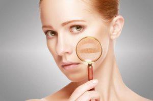 Lee más sobre el artículo Manchas en la cara | ¿Cómo disimularlas?