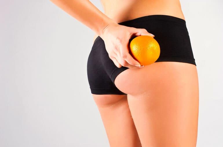 En este momento estás viendo Métodos para eliminar la celulitis de tu cuerpo de forma exitosa