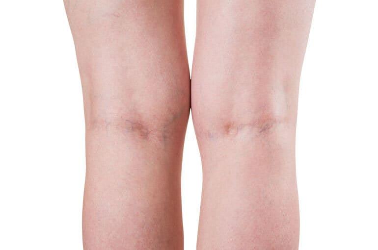 En este momento estás viendo ¿Por qué surgen varices en las piernas? ¿Se puede prevenir?