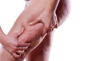 Lee más sobre el artículo ¿Qué es la celulitis infecciosa? Te lo contamos