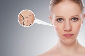 Lee más sobre el artículo ¿Tienes la piel seca y escamosa? Combate el frío con estos 9 consejos
