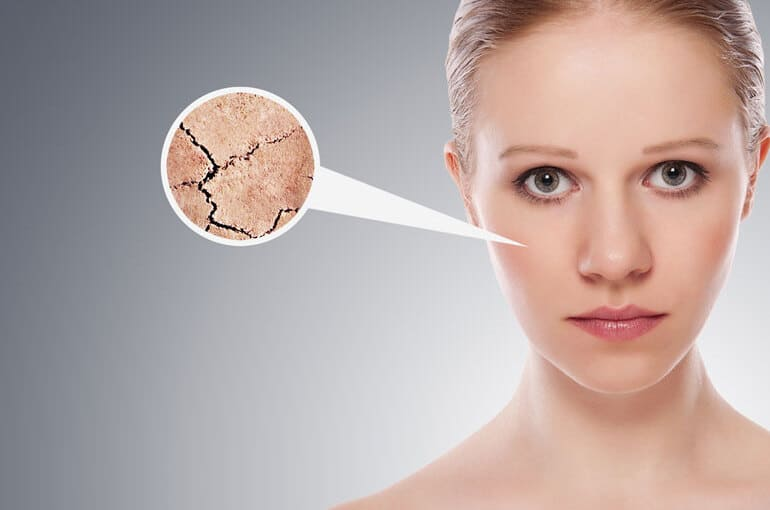 En este momento estás viendo ¿Tienes la piel seca y escamosa? Combate el frío con estos 9 consejos