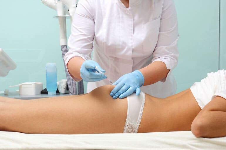 En este momento estás viendo Tratamiento para la celulitis | La mesoterapia es tu aliada